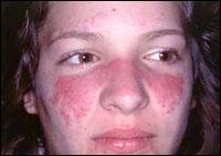 Lupusa. Hiztegia lantzen - Sekuentzia