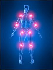 Artritis erreumatoidea. Sekuentzia